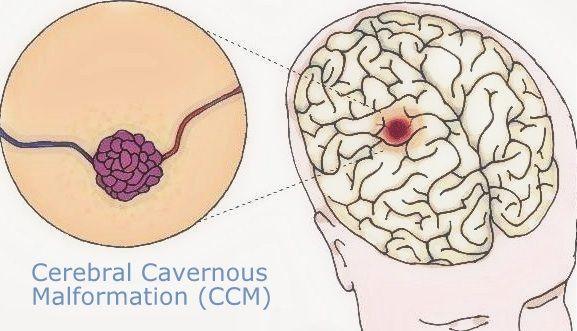 พุธ-ไซแอนซ์ –  มันเกี่ยวกันได้ไง – แบคทีเรียในลำไส้ทำให้หลอดเลือดสมองแตก ?
